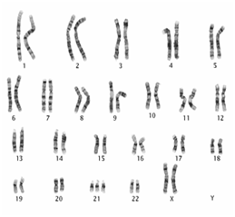 Chromosomes indicating Down syndrome (T21)